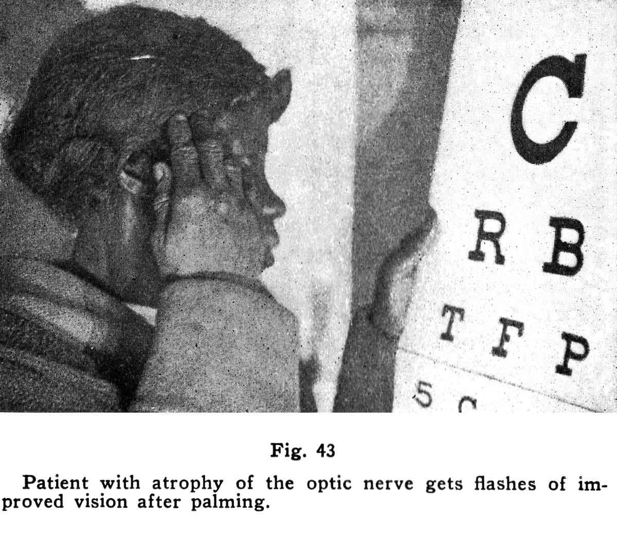 Dr. Bates with African American girl using the Snellen eye chart at the Harlem Clinic in New York